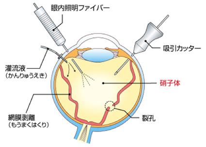 網膜・硝子体日帰り手術