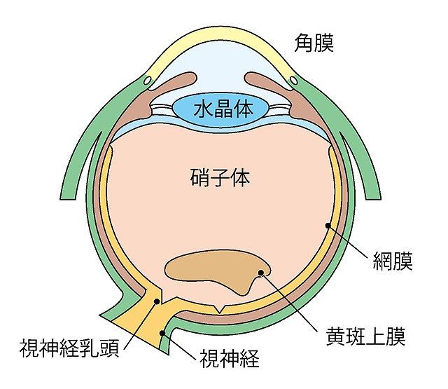 黄斑前膜(黄斑上膜)
