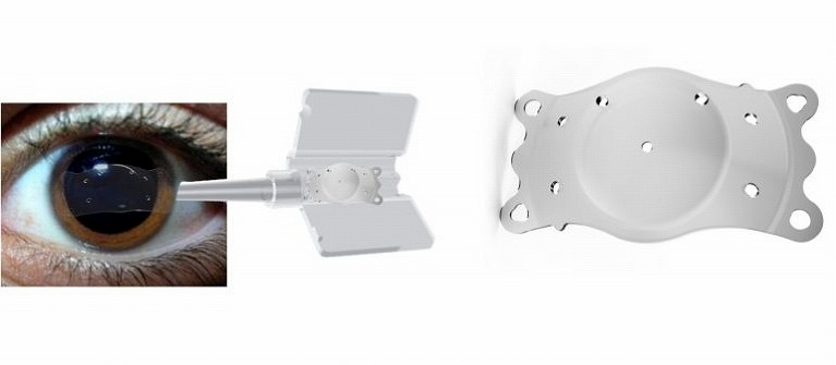Implantable Phakic Contact Lensの手術について