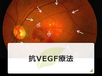 抗VEGF療法