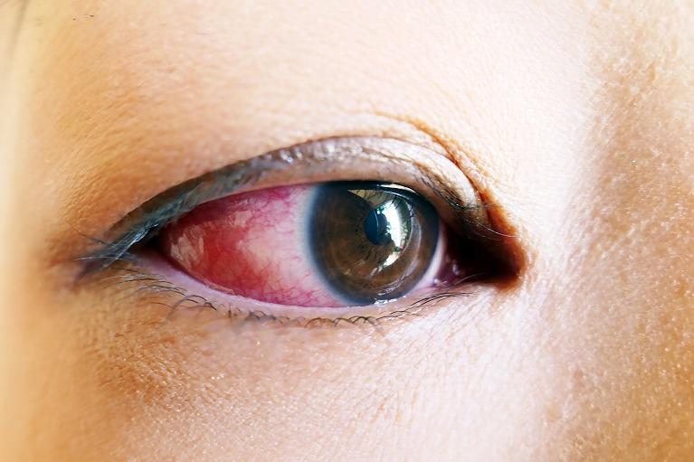 白目が赤い、白目や結膜の充血